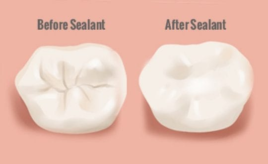 The Difference Between Dental Fillings, PRR, and Sealants